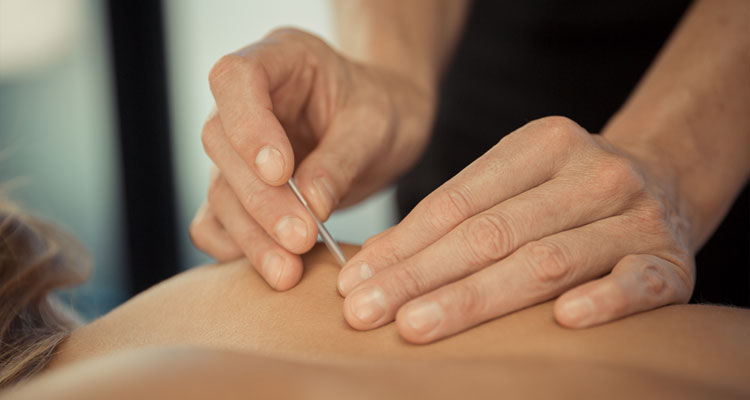 SERVICES OFFERED - image dry-needling-opt on https://www.neuromuscularmassage.com.au